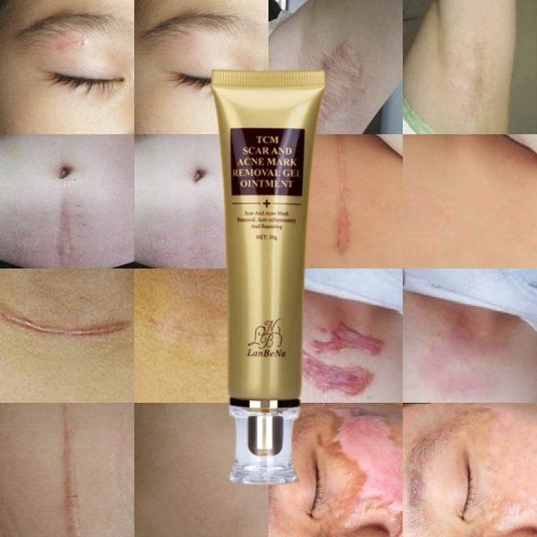 W_960_w_960_30g-lanbena-acne-scar-removal-cream-gel-skin-repair-face-cream-acne-spots-acne-treatment-blackhead
