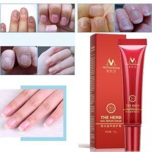 w_960_3-unids-esencia-tratamiento-de-hongos-en-las-u-as-y-los-pies-para-blanquear-gel